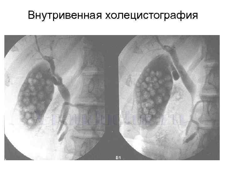 Внутривенная холецистография