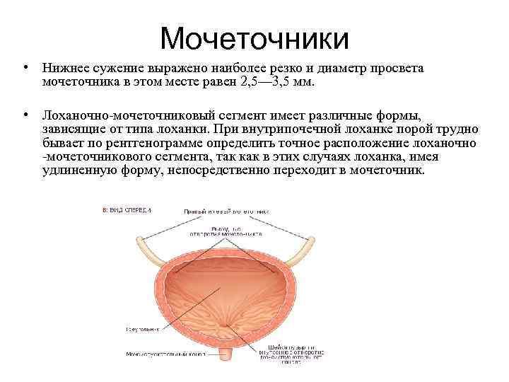 Мочеточники • Нижнее сужение выражено наиболее резко и диаметр просвета мочеточника в этом месте