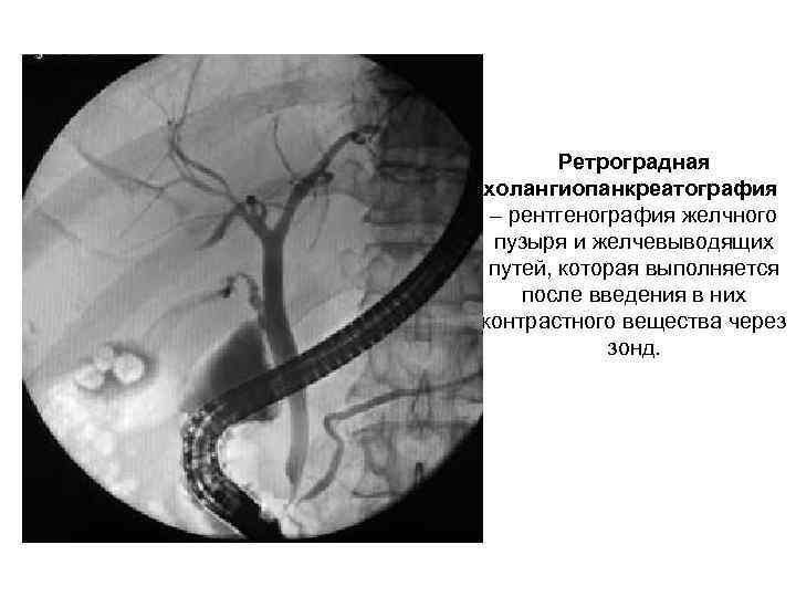 Ретроградная холангиопанкреатография – рентгенография желчного пузыря и желчевыводящих путей, которая выполняется после введения в