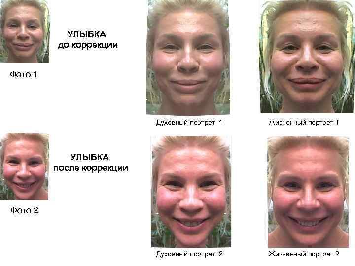 делают все, сайт ануашвили фото автора втором третьем году