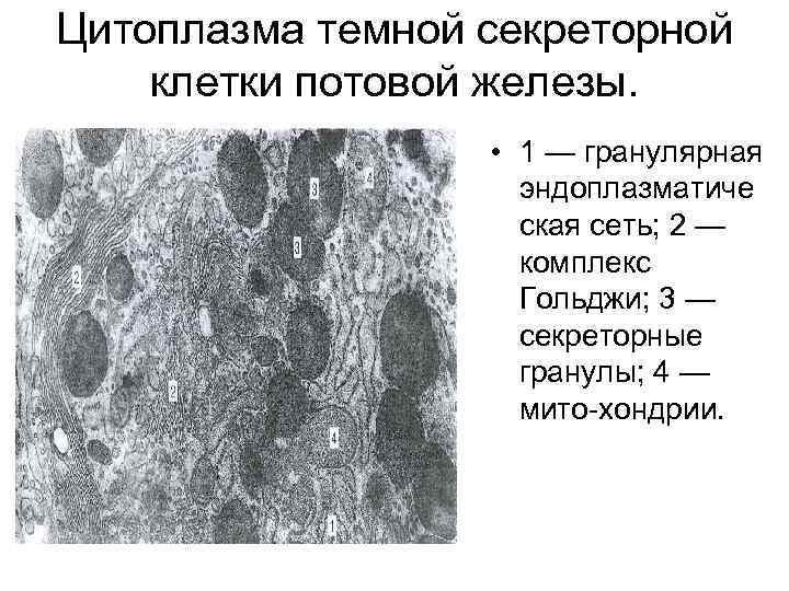 Цитоплазма темной секреторной клетки потовой железы. • 1 — гранулярная эндоплазматиче ская сеть; 2