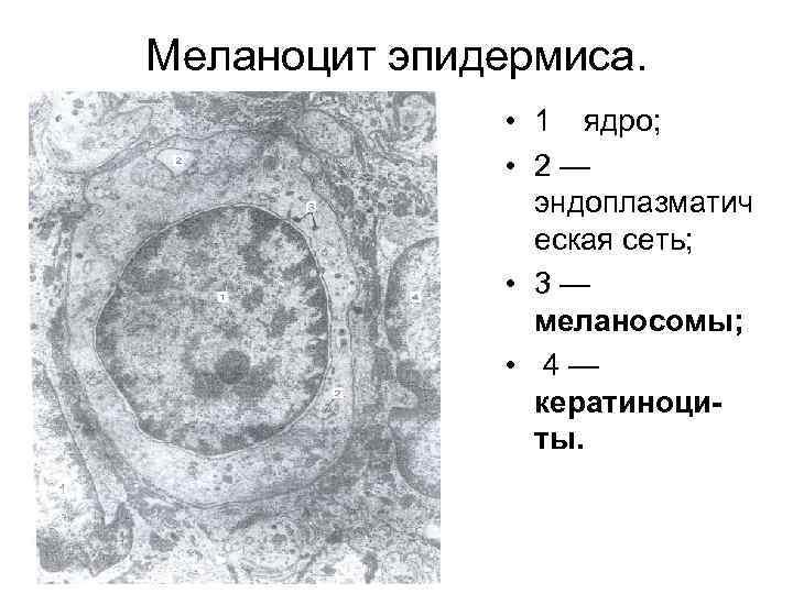Меланоцит эпидермиса. • 1 ядро; • 2— эндоплазматич еская сеть; • 3— меланосомы; •