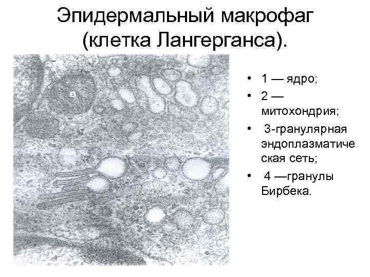Эпидермальный макрофаг (клетка Лангерганса). • 1 — ядро; • 2— митохондрия; • 3 гранулярная