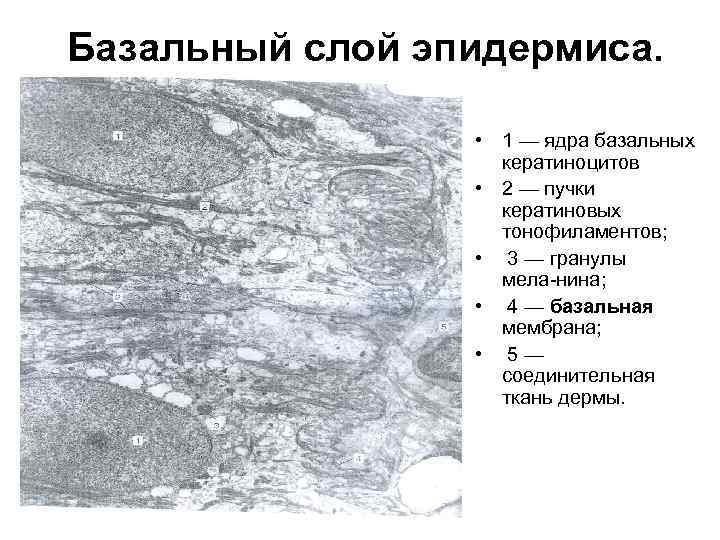 Базальный слой эпидермиса. • 1 — ядра базальных кератиноцитов • 2 — пучки кератиновых