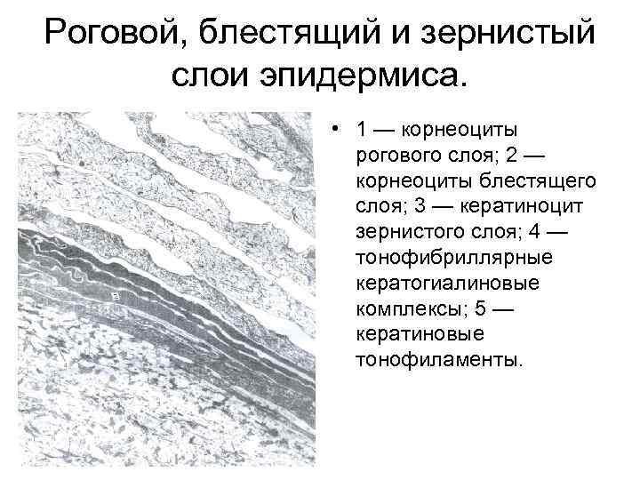 Роговой, блестящий и зернистый слои эпидермиса. • 1 — корнеоциты рогового слоя; 2 —