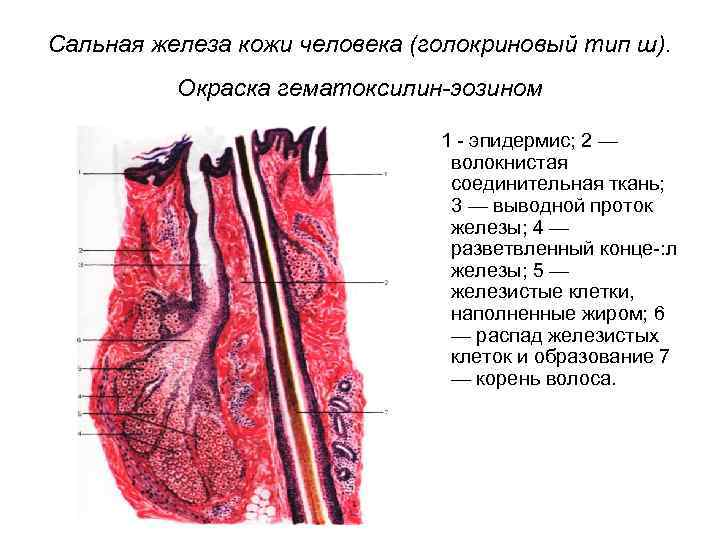 Сальная железа кожи человека (голокриновый тип ш). Окраска гематоксилин-эозином 1 эпидермис; 2 — волокнистая