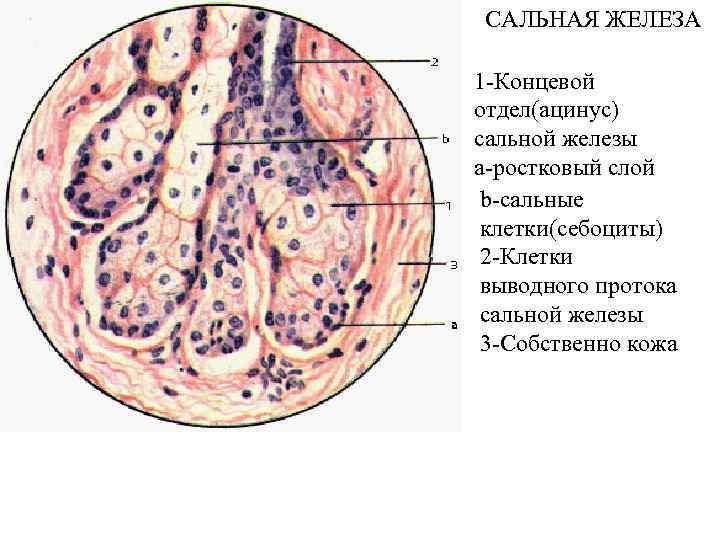 САЛЬНАЯ ЖЕЛЕЗА 1 -Концевой отдел(ацинус) сальной железы a-ростковый слой b-сальные клетки(себоциты) 2 -Клетки выводного