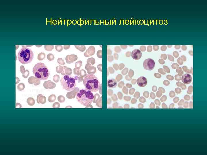 Нейтрофильный лейкоцитоз