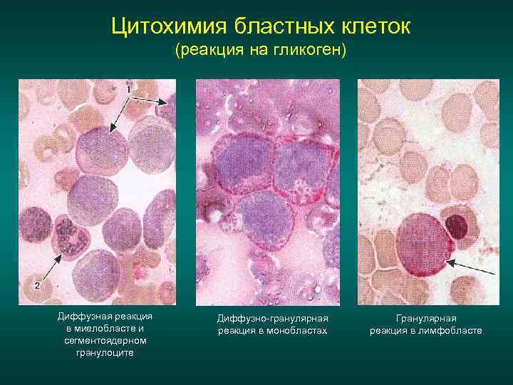 Цитохимия бластных клеток (реакция на гликоген) Диффузная реакция в миелобласте и сегментоядерном гранулоците Диффузно-гранулярная
