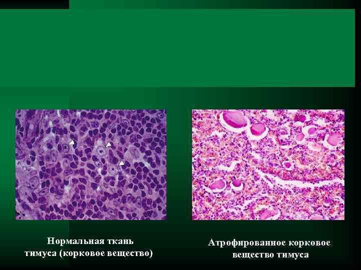 Нормальная ткань тимуса (корковое вещество) Атрофированное корковое вещество тимуса