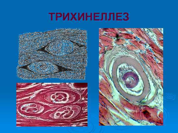 Трихинеллеза в картинках