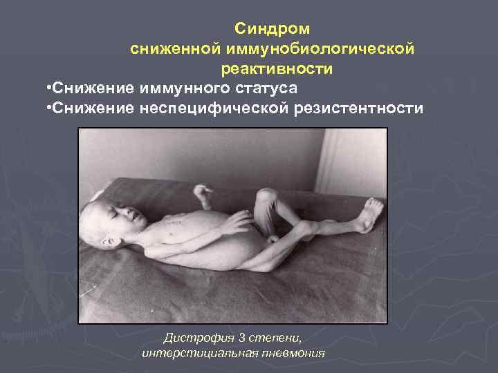 Синдром   сниженной иммунобиологической    реактивности •
