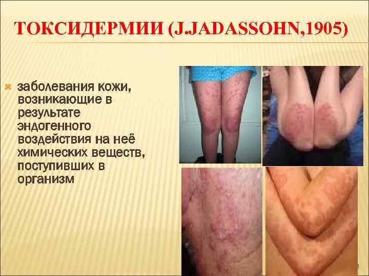 ТОКСИДЕРМИИ (J. JADASSOHN, 1905)  заболевания кожи, возникающие в результате эндогенного воздействия