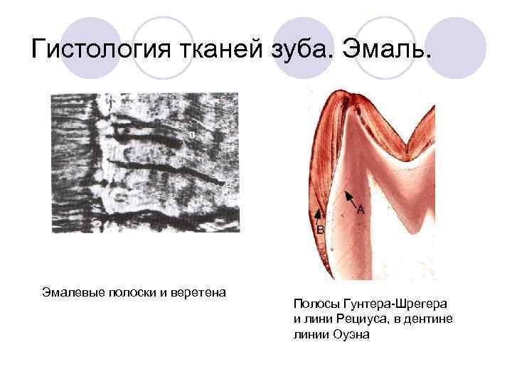 Гистология тканей зуба. Эмаль. Эмалевые полоски и веретена      Полосы