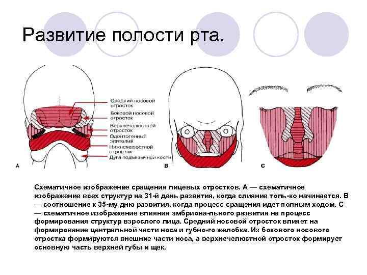 Развитие полости рта.  Схематичное изображение сращения лицевых отростков. А — схематичное  изображение