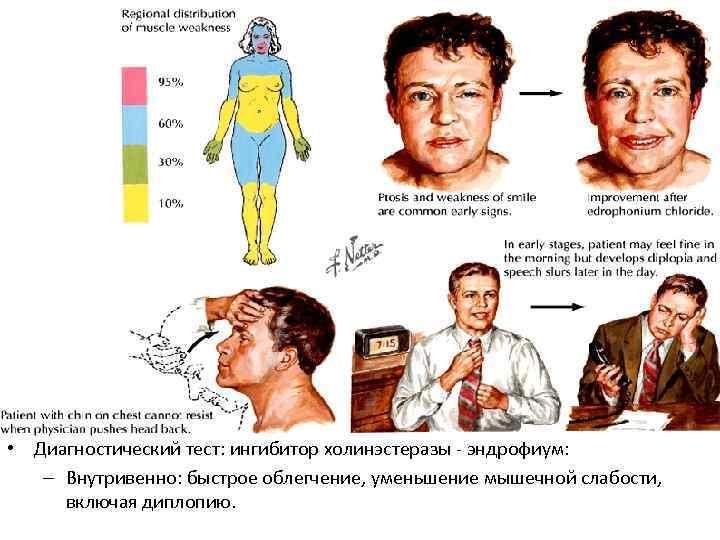 • Диагностический тест: ингибитор холинэстеразы - эндрофиум: – Внутривенно: быстрое облегчение, уменьшение мышечной