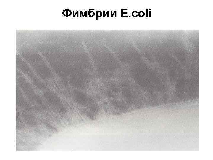 Фимбрии E. coli