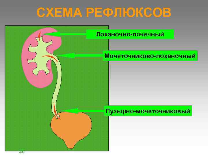СХЕМА РЕФЛЮКСОВ  Лоханочно-почечный  Мочеточниково-лоханочный   Пузырно-мочеточниковый