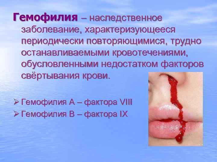 Гемофилия – наследственное заболевание, характеризующееся периодически повторяющимися, трудно останавливаемыми кровотечениями,  обусловленными недостатком факторов
