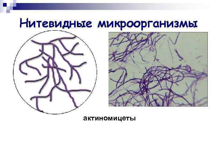 Нитевидные микроорганизмы   актиномицеты