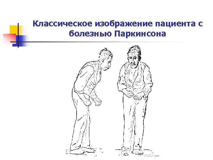 Классическое изображение пациента с   болезнью Паркинсона