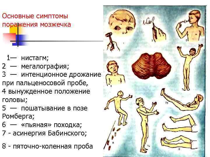 Основные симптомы поражения мозжечка 1— нистагм;  2 — мегалография;  3 — интенционное