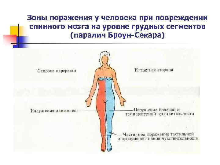 Зоны поражения у человека при повреждении спинного мозга на уровне грудных сегментов  (паралич