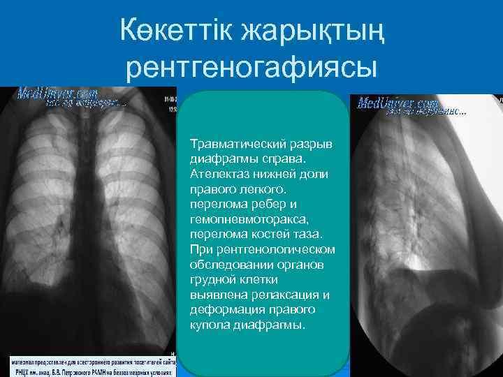 Көкеттік жарықтың рентгеногафиясы Травматический разрыв диафрагмы справа.  Ателектаз нижней доли правого легкого.