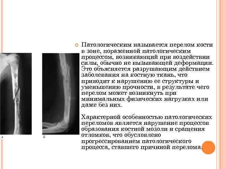 ПАТОЛОГИЧЕСКИЙ ПЕРЕЛОМ    Патологическим называется перелом кости   в зоне, пораженной