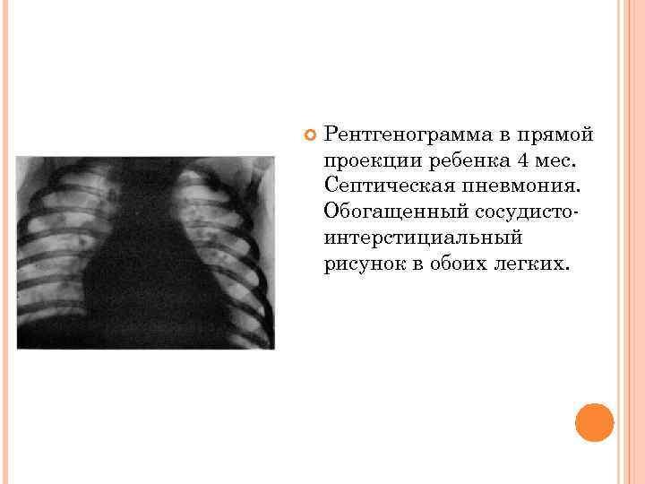 Рентгенограмма в прямой проекции ребенка 4 мес. Септическая пневмония. Обогащенный сосудисто- интерстициальный