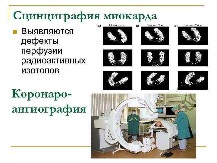 Сцинциграфия миокарда n  Выявляются дефекты перфузии радиоактивных изотопов Коронаро- ангиография