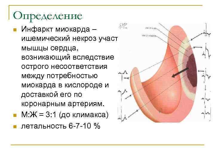 Определение n  Инфаркт миокарда – ишемический некроз участка мышцы сердца, возникающий вследствие острого