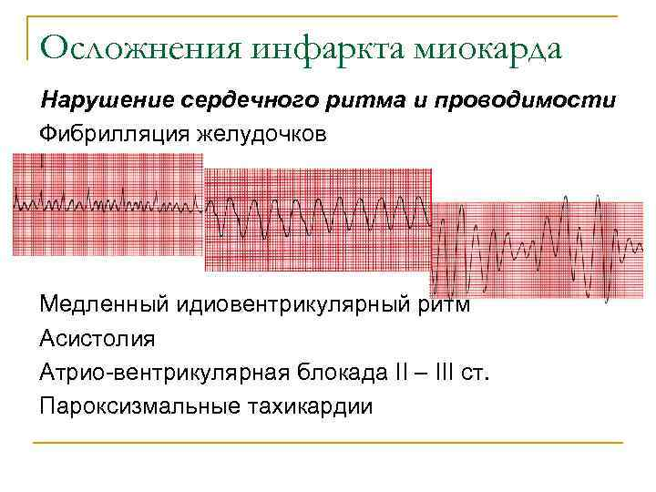 Осложнения инфаркта миокарда Нарушение сердечного ритма и проводимости Фибрилляция желудочков Медленный идиовентрикулярный ритм Асистолия