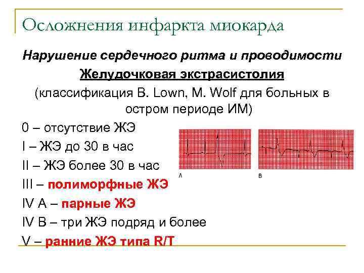 Осложнения инфаркта миокарда Нарушение сердечного ритма и проводимости  Желудочковая экстрасистолия (классификация B. Lown,