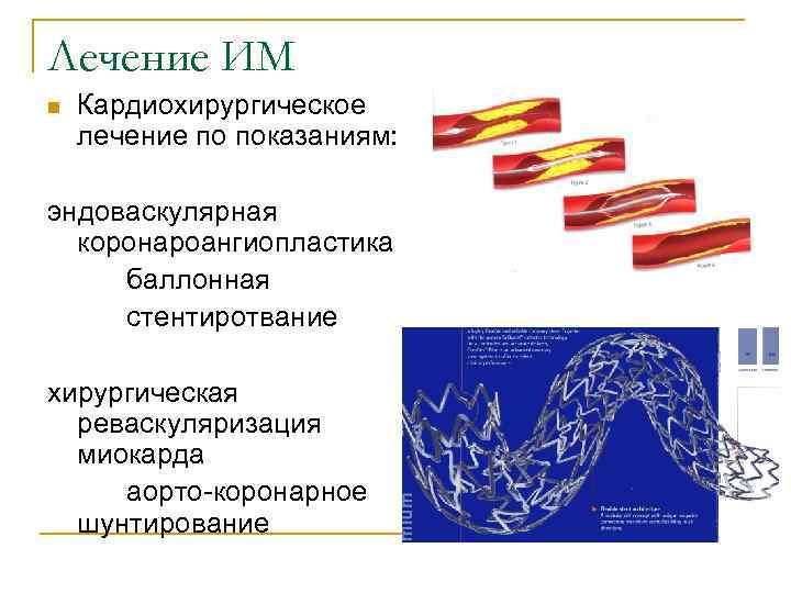 Лечение ИМ n  Кардиохирургическое лечение по показаниям:  эндоваскулярная  коронароангиопластика баллонная стентиротвание