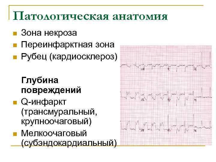 Патологическая анатомия n  Зона некроза n  Переинфарктная зона n  Рубец (кардиосклероз)