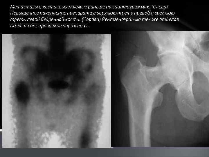 Метастазы в кости, выявляемые раньше на сцинтиграммах. (Слева) Повышенное накопление препарата в верхнюю треть