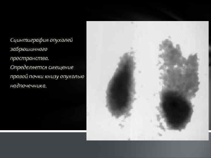 Сцинтиграфия опухолей забрюшинного пространства. Определяется смещение правой почки книзу опухолью надпочечника.