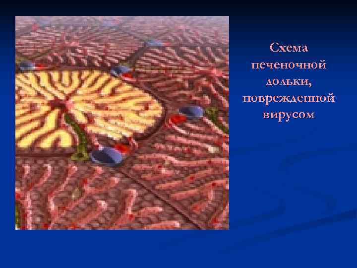 Схема печеночной  дольки, поврежденной  вирусом