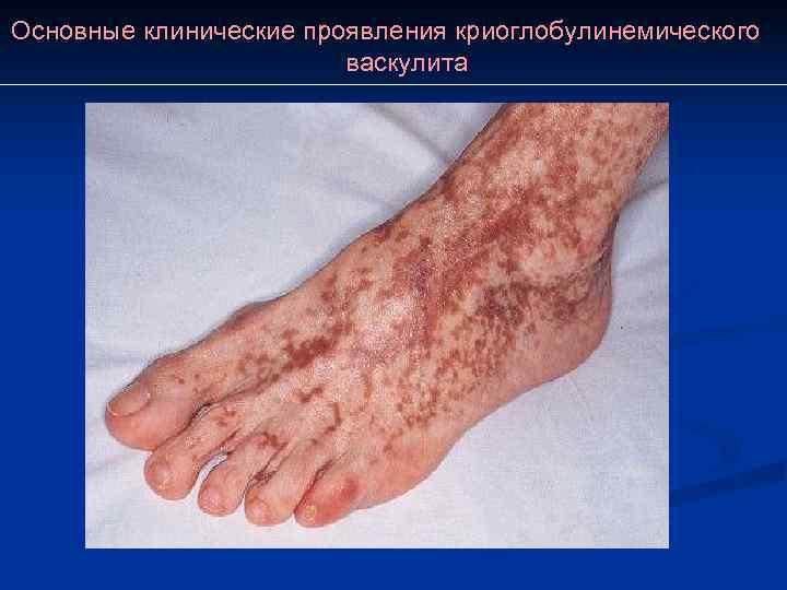 Основные клинические проявления криоглобулинемического     васкулита