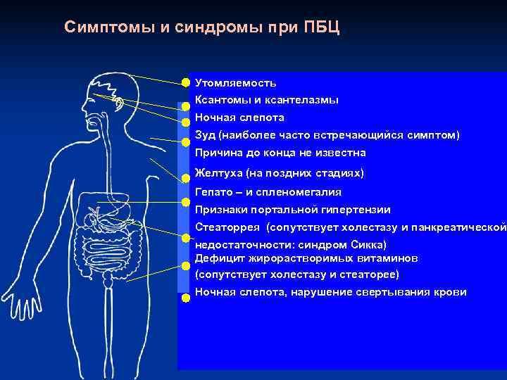 Симптомы и синдромы при ПБЦ    Утомляемость   Ксантомы и ксантелазмы