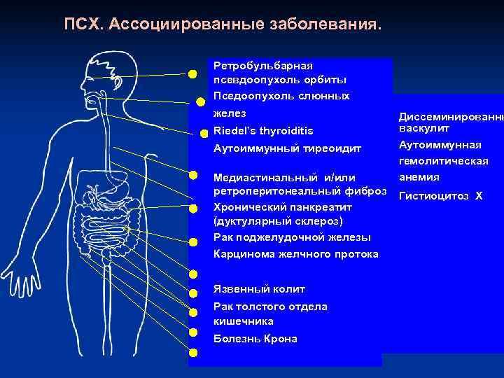 ПСХ. Ассоциированные заболевания.   Ретробульбарная    псевдоопухоль орбиты