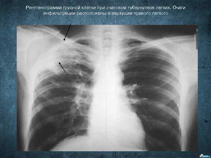 Рентгенограмма грудной клетки при очаговом туберкулезе легких. Очаги  инфильтрации расположены в верхушке правого