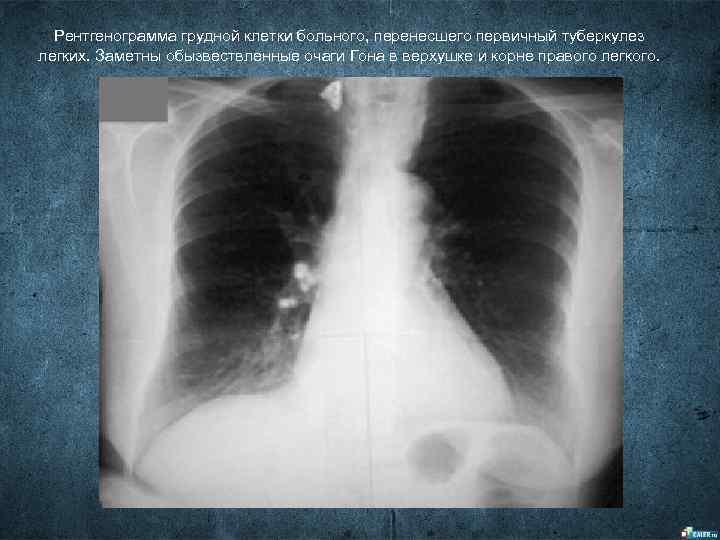 Рентгенограмма грудной клетки больного, перенесшего первичный туберкулез легких. Заметны обызвествленные очаги Гона в