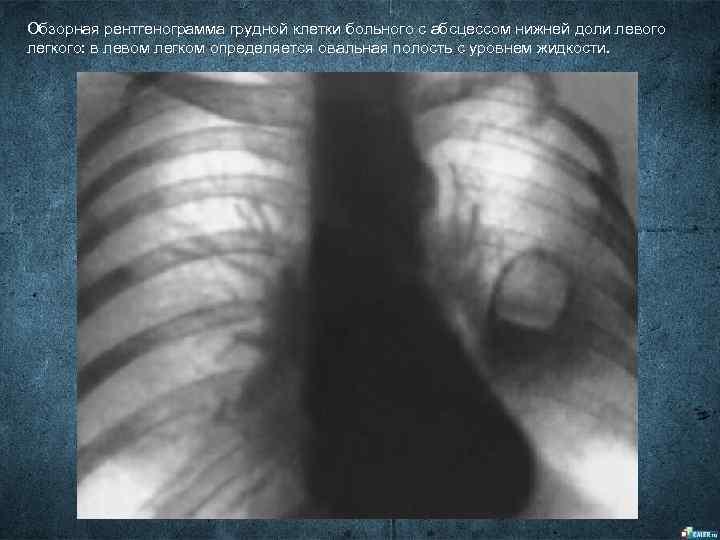Обзорная рентгенограмма грудной клетки больного с абсцессом нижней доли левого легкого: в левом легком