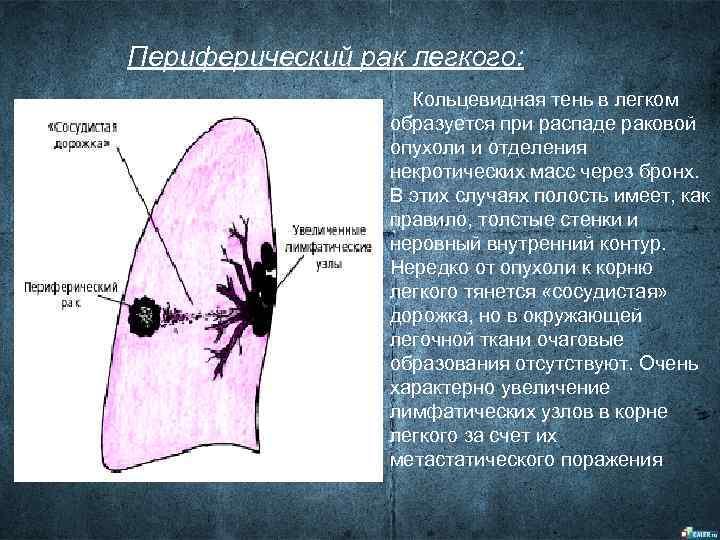 Периферический рак легкого:     Кольцевидная тень в легком   образуется