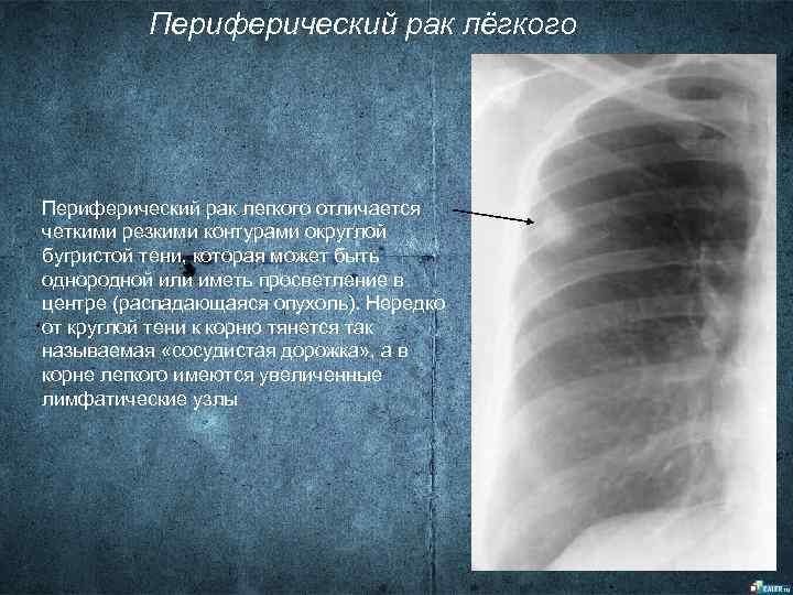 Периферический рак лёгкого Периферический рак легкого отличается четкими резкими контурами округлой