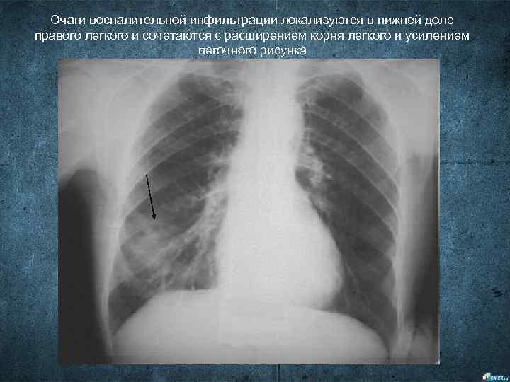Очаги воспалительной инфильтрации локализуются в нижней доле правого легкого и сочетаются с расширением