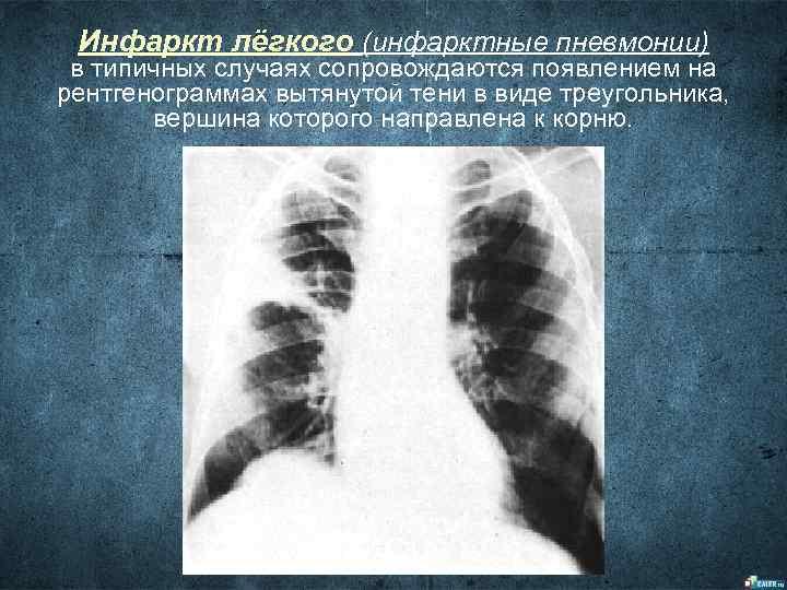 Инфаркт лёгкого (инфарктные пневмонии) в типичных случаях сопровождаются появлением на рентгенограммах вытянутой тени