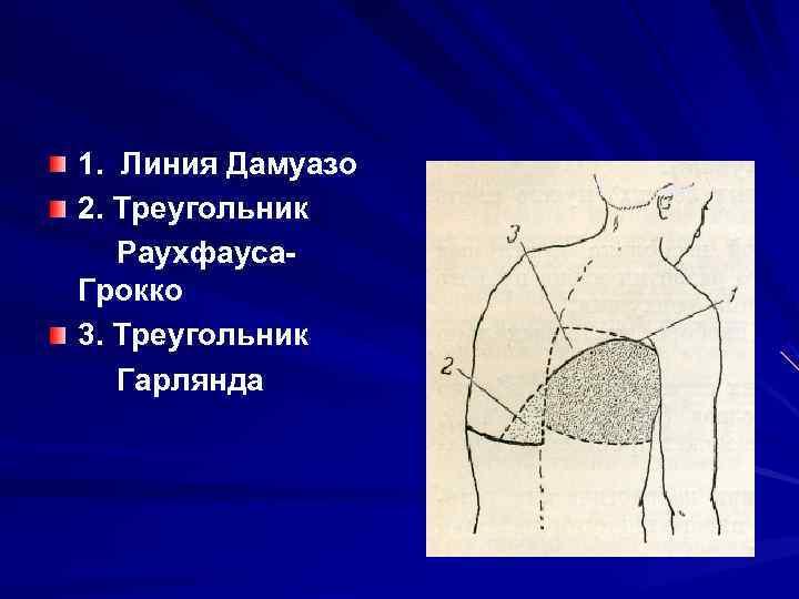 1. Линия Дамуазо 2. Треугольник  Раухфауса Грокко 3. Треугольник  Гарлянда